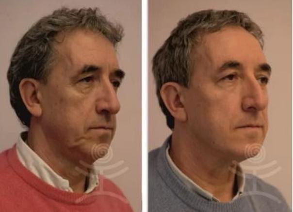 Fotky před a po aplikaci zlatých nití. (foto: soukromý archiv kliniky)