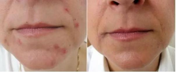Foto před a po léčbě akné.