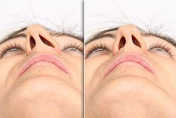 Pro koho operace nosu (rhinoplastika) není vhodná