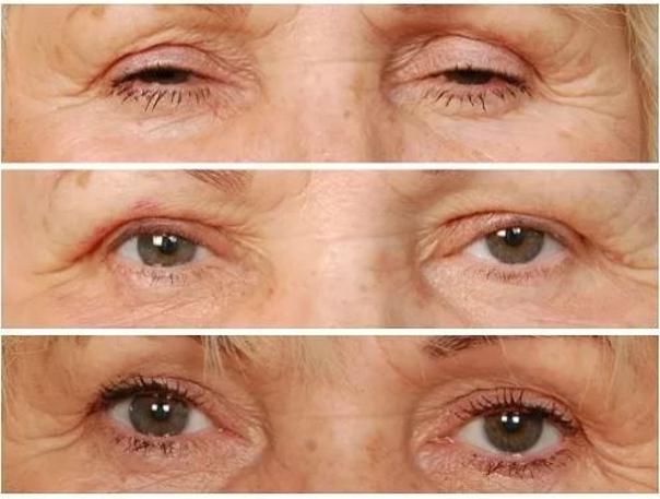 Žena, 68 let, střední ptóza bilat.  Foto: Před operací, 1 týden a 3 měsíce po operaci. (shora)