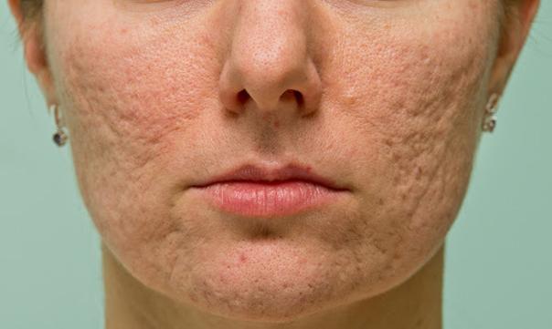 Co pomáhá na akné v dospělosti
