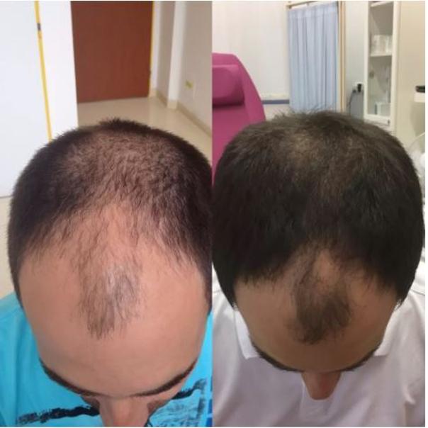 Léčba vypadávání vlasů (alopecie).