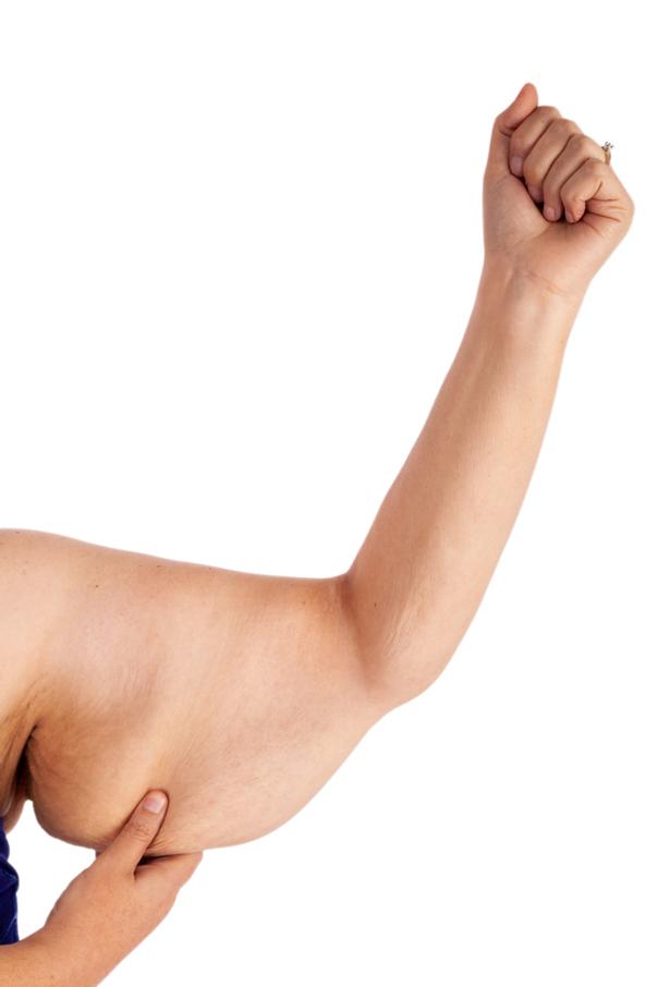 Jak probíhá zotavení po gastrickém bypassu?