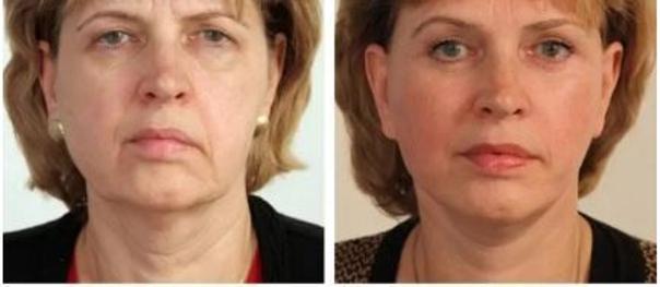 Facelift pomocí 3D nití. Fotky před a po zákroku (foto: soukromý archiv kliniky)