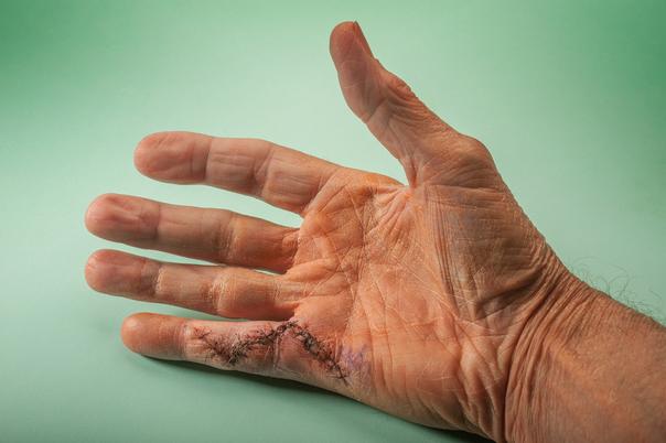 Výsledky chirurgie ruky