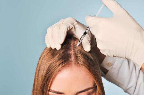 Možnosti léčby vypadávání vlasů