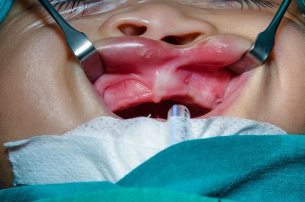 Operace rozštěpu patra