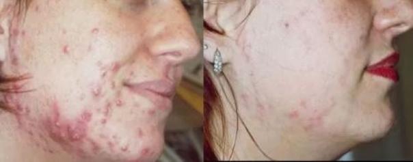 Jak funguje laser na akné? Podívejte se na foto před a po. (foto soukromý archiv kliniky)