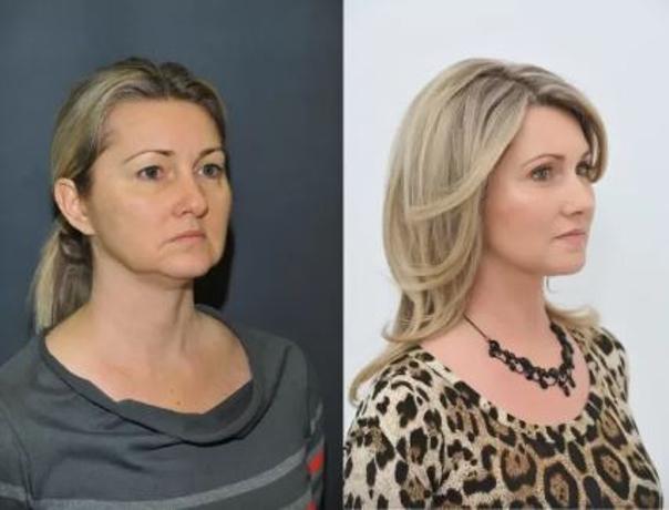 Fotky před a po niťovém liftingu (foto: soukromý archiv kliniky)