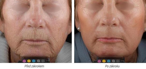 Laserová dermatologická klinika ALTOS