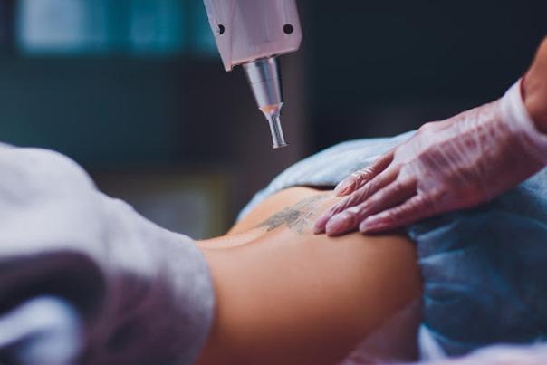 Nejběžnější lasery pro odstranění tetování