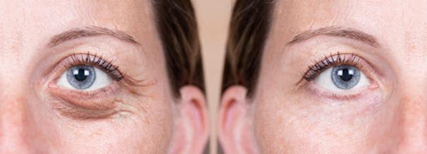 Výhody blefaroplastiky Plexrem