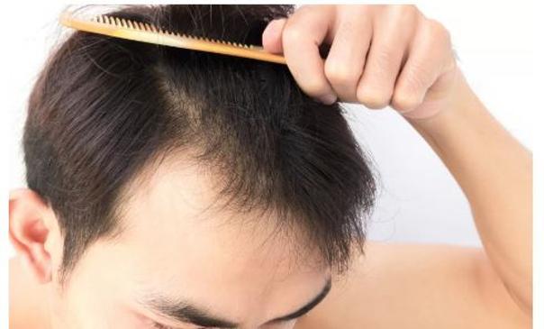 Biostimulační laser Alopecie