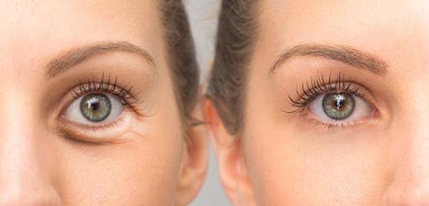 Operace dolních víček odstraní vaky pod očima. (ilustrační foto)