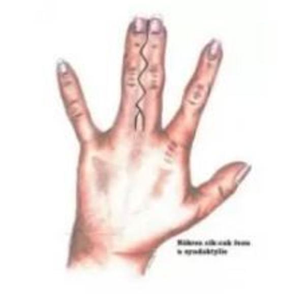 Syndaktylie (srůst prstů)