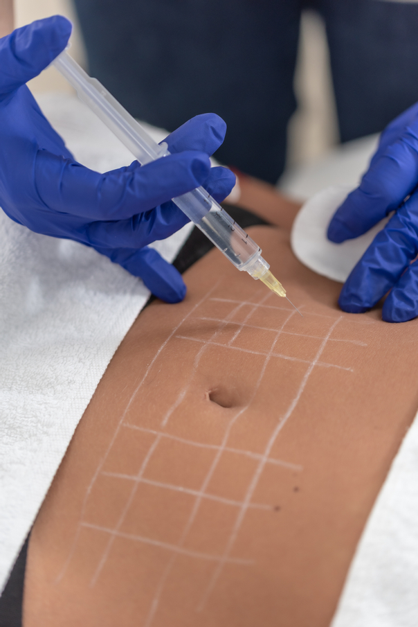 Co je injekční lipolýza?