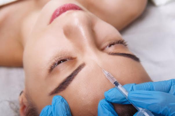 Postup a typy injekčních výplní pro vrásky