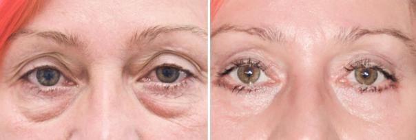 V–CLINIC - klinika plastické a estetické chirurgie & gynekologie