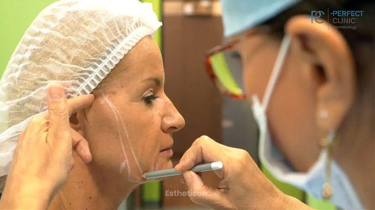 Anti-aging proměna: aplikace botulotoxinu, kyseliny hyaluronové a APTOS nití