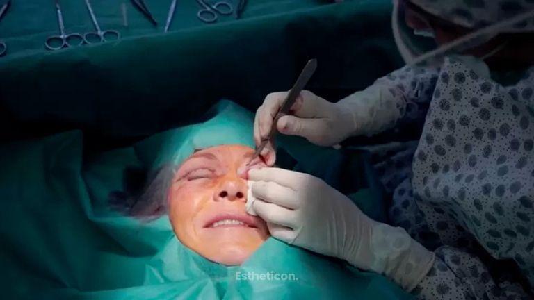 Operace víček od Ottlens (blepharoplastika)