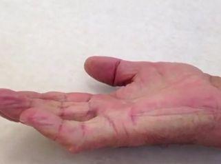 Dupuytrenova kontraktura - injekční léčba kolagenázou