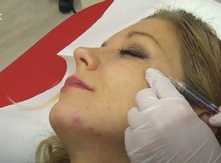 Plazma terapie - Esthetic Medical