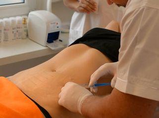 Ošetření a lifting břicha FE kanyla