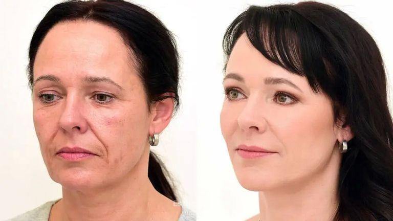 Proměna paní Dagmar na Klinice YES VISAGE - operace očních víček a omlazení obličeje
