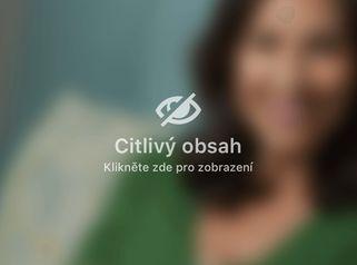 Meet the doctor: MUDr. Jana Bartošková