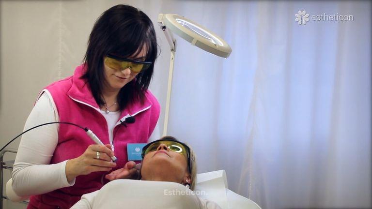 Jak se odstraňují žilky v obličeji a co od toho můžeme očekávat?