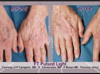 Léčba pigmentace