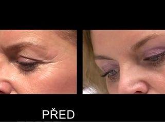 Operace očních víček - Plastické proměny