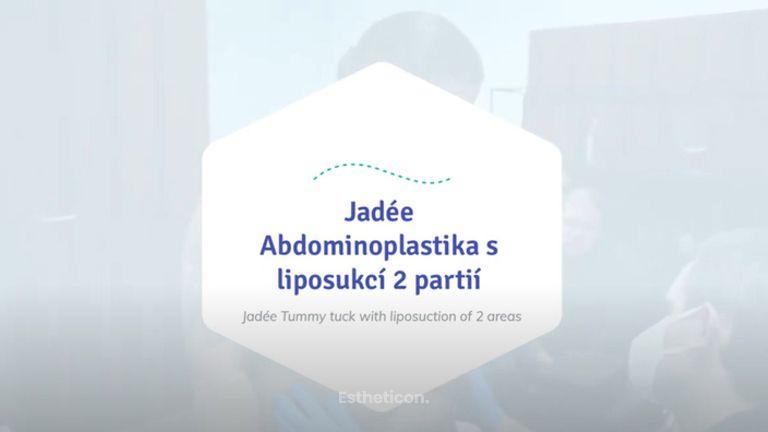 Jadée - Tummy tuck with liposuction of 2 areas