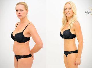 VIDEOPROMĚNA: Paní Jana na Laserové liposukci SlimLipo na Klinice YES VISAGE