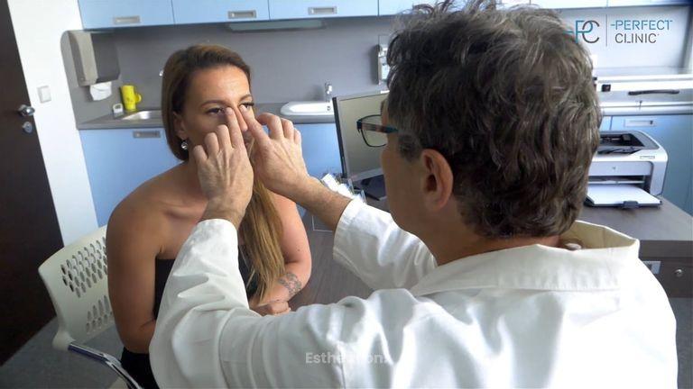Plastika nosu (zmenšení nosu s odstraněním hrbolu): očima pacientky i chirurga