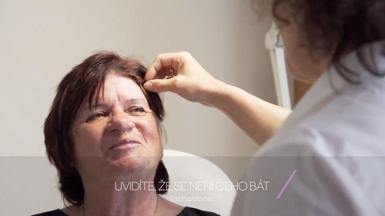 Odstranění vrásek botulotoxinem očima pacientky