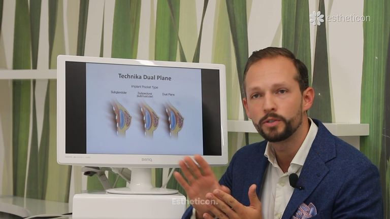 Přirozený tvar a plný objem prsou: augmentace anatomickými implantáty