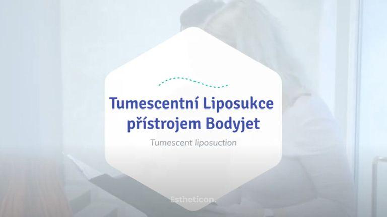 Tumescentní liposukce přístrojem Body-Jet - Nejčastější otázky!