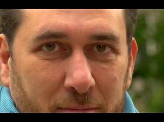 Domenico Martucci - operace očních víček