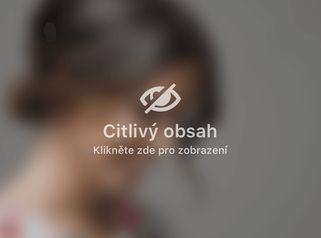 Přirozené zvětšení rtů na klinice Medical Institut v Plzni