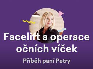 Facelift a operace očních víček – příběh paní Petry