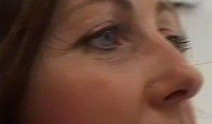Cesta ke kráse - Operace očních víček
