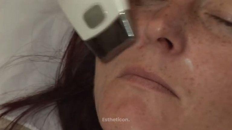 Revitalizace obličeje 1. část - Galvanická žehlička
